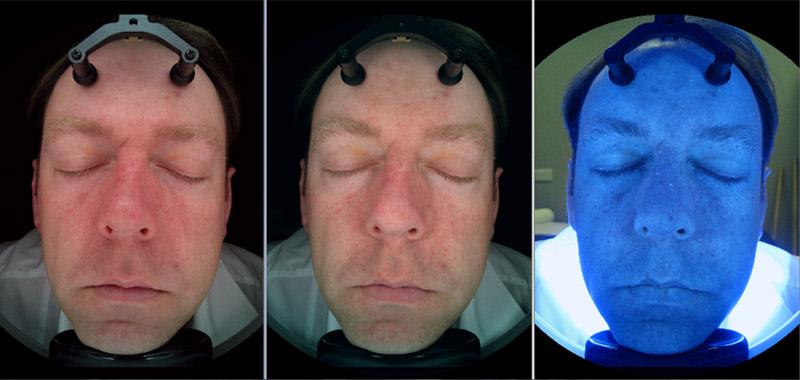 The three photos of Janus Skin Analysis